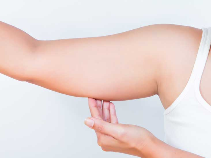 Fastest Way to Lose Arm Fat